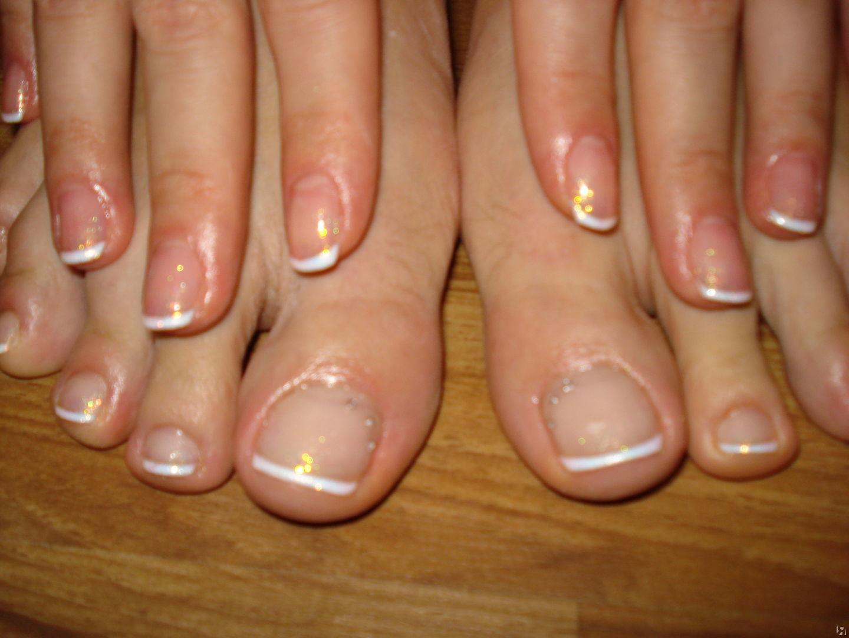 Педикюр на кривых ногтях фото